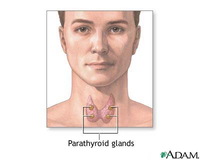 Parathyroid hyperplasia