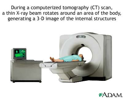 CT scan - illustration