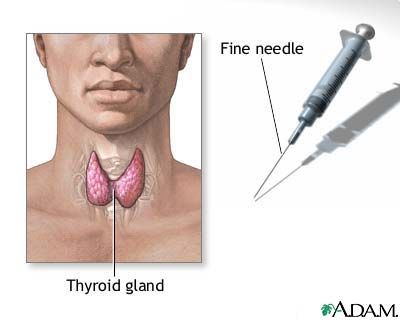 Thyroid nodule fine needle aspiration (FNA) biopsy illustration